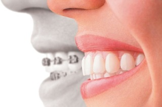 Malocclusion of the Teeth: Causes and Treatment - Medical Tourism City